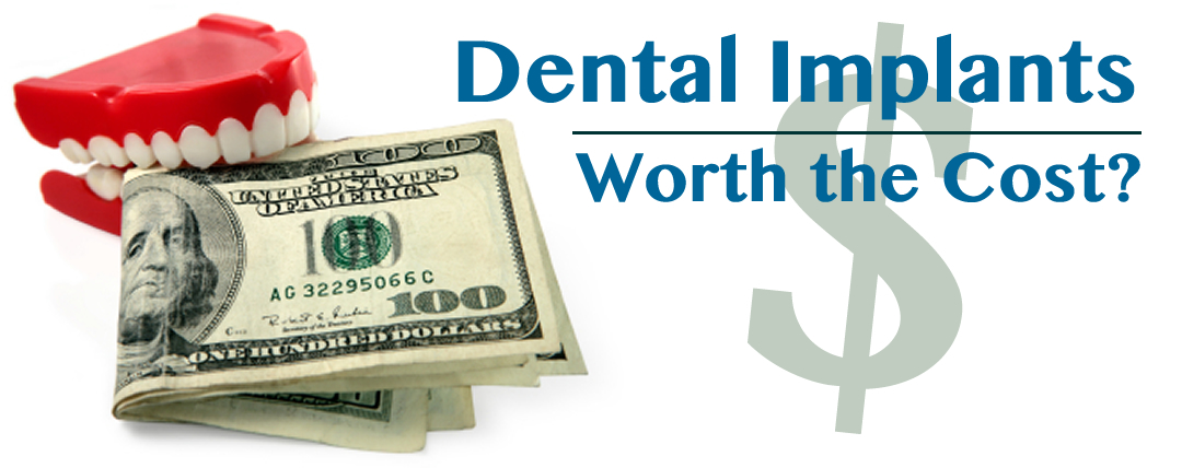 Dental Implants in Michigan City:  Worth the Cost?